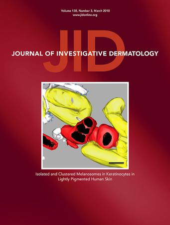 Journal of Investigative Dermatology template (Elsevier)