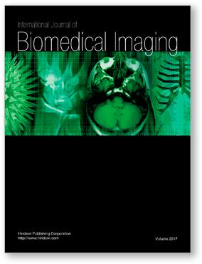 International Journal of Biomedical Imaging template (Hindawi)