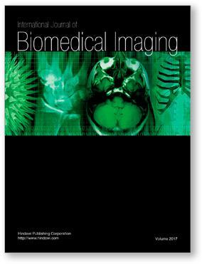 International Journal of Biomedical Imaging template (Hindawi)