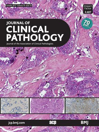Journal of Clinical Pathology template (BMJ Publishing Group)