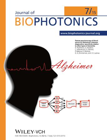 Journal of Biophotonics template (Wiley)